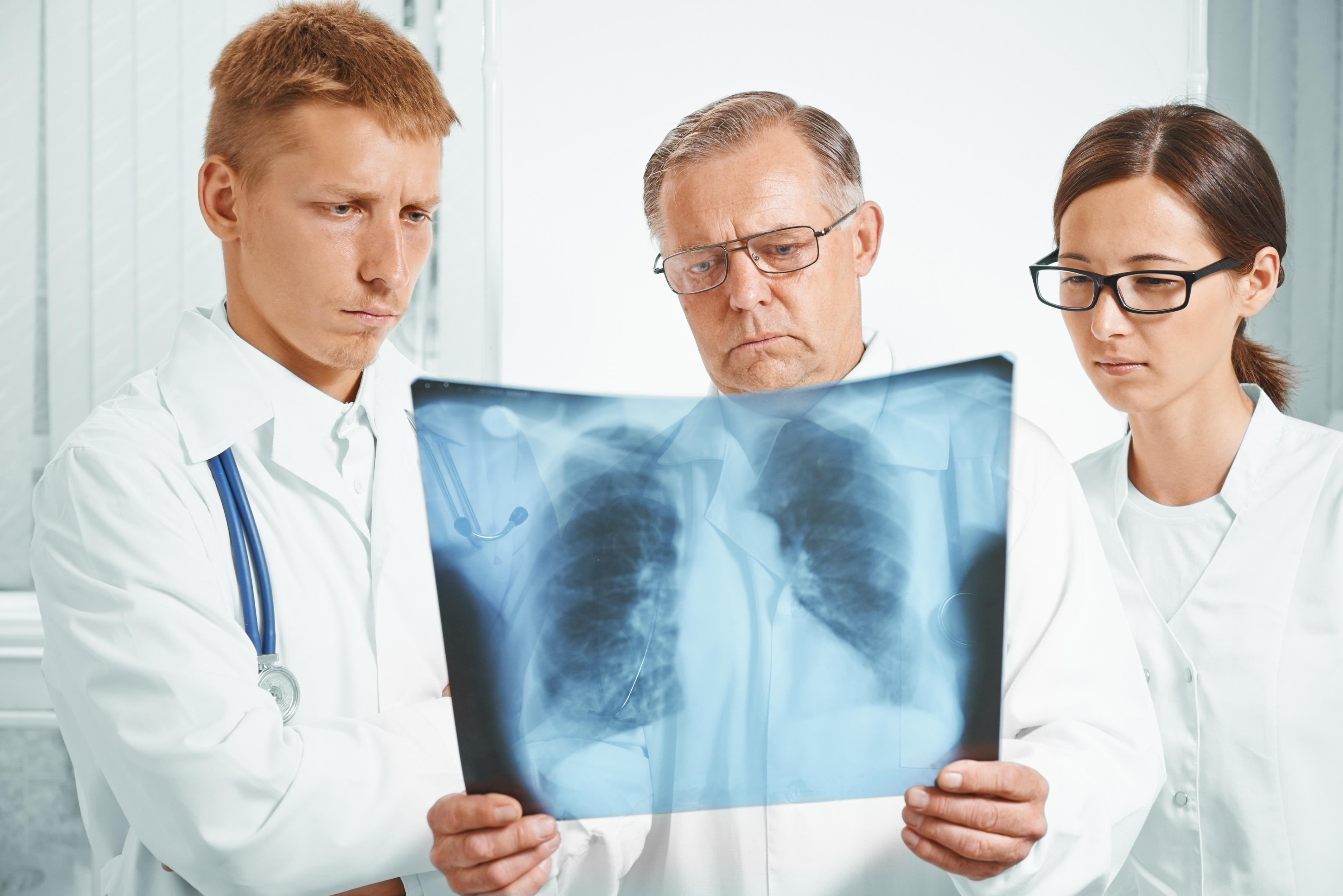 Diagnose en kenmerken van IPF