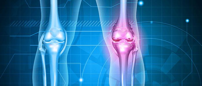 Behandeling van artrose vooral gericht op pijnbestrijding