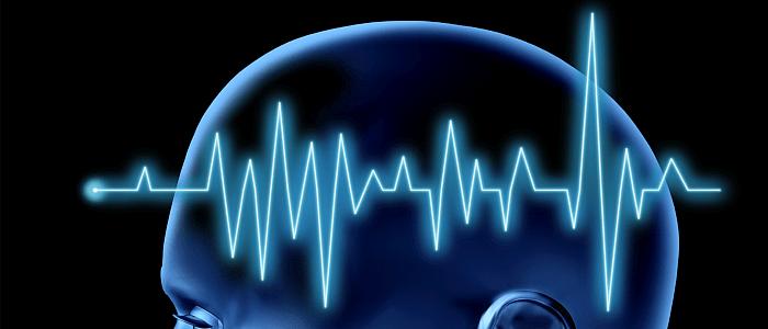 De behandeling van een herseninfarct: haast is geboden