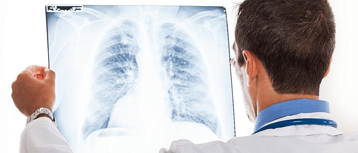 ild: meer dan 150 zeldzame longziekten