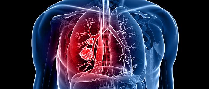 """Patiëntenverhaal longkanker: """"Ik heb geluk gehad"""""""