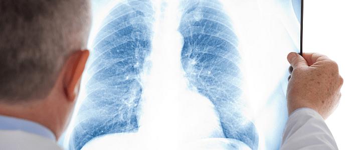 Longziekte | Zorgverlener | Mijn Gezondheidsgids
