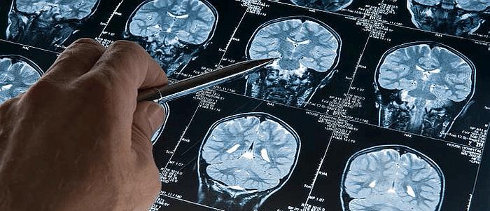 Dagboek van een MS neuroloog