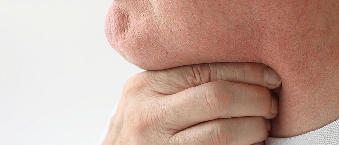Patiëntenverhaal keeltumor
