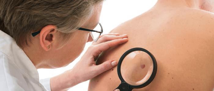 Non-melanoma huidkanker: niet dodelijk, wel gevaarlijk