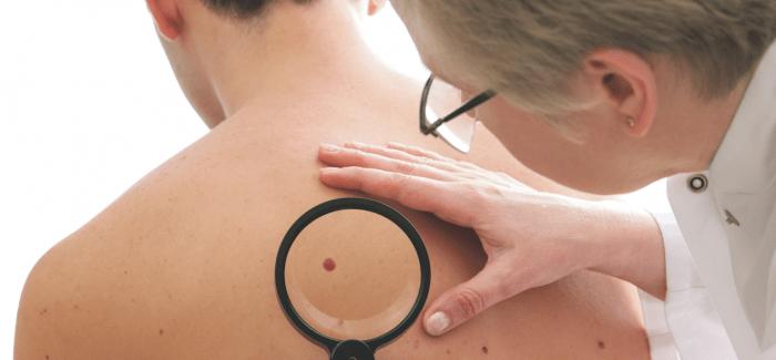 Huidkanker uitgelicht: de mens is geen tosti