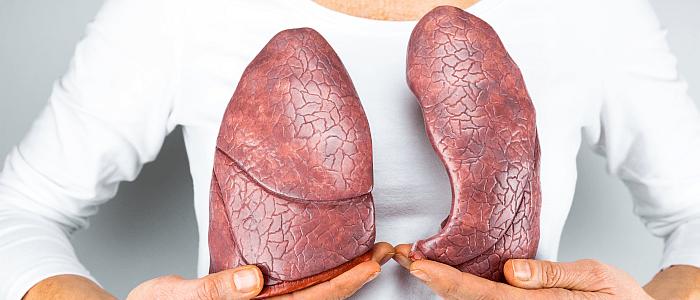 Acceptatie en herkenning van longfibrose