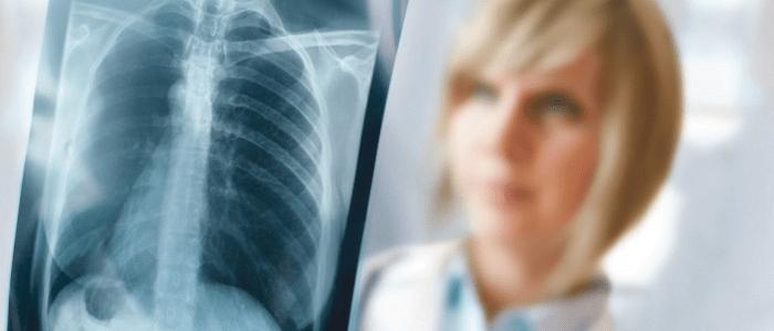 Longkanker: een bedenkelijke inhaalslag