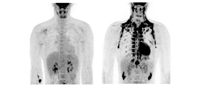 Bruin vet in de strijd tegen overgewicht