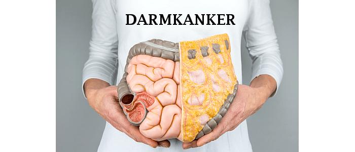 Betere prognose en behandeling van darmkanker