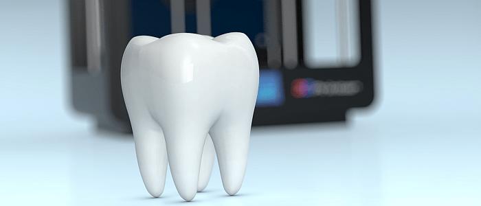 Doorbraak van 3D met implantaten in gebit