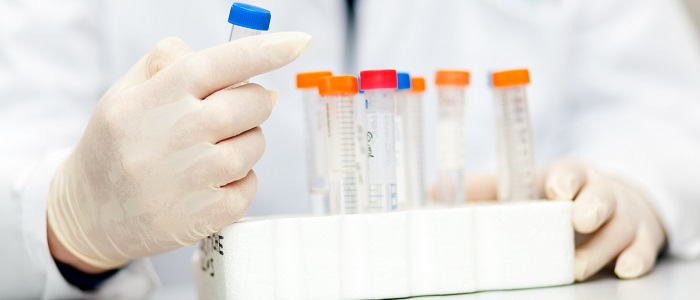 'Nieuwe test ontdekt mogelijk Parkinson'