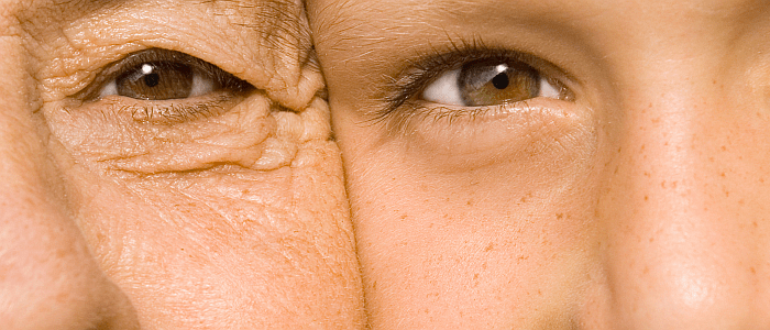 Psoriasistips voor jong en oud
