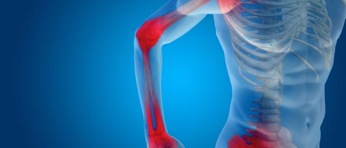 Ontsteking oorzaak pijn bij artrose