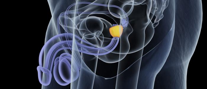 Baanbrekende verbeteringen rondom prostaatkanker