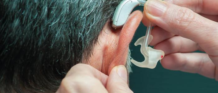 Opnieuw leren horen met cochleair implantaat