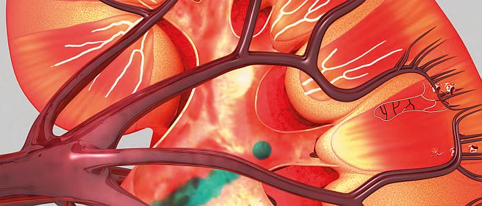 Nierschade: van preventie tot transplantatie