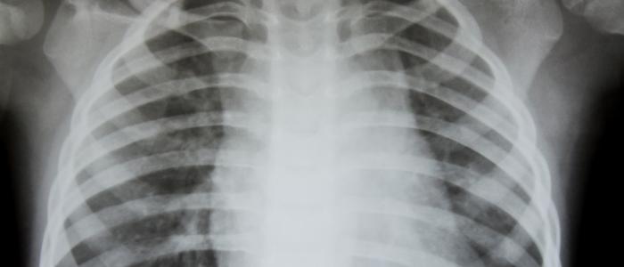 Blaastest voor opsporen van luchtweginfecties bij taaislijmziekte