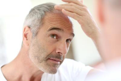 Stap dichterbij richting behandeling van kaalheid bij mannen