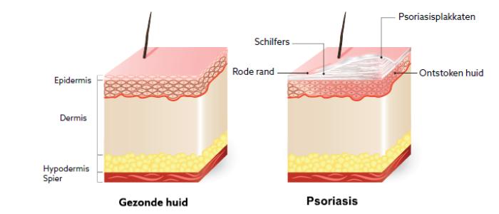 Psoriasis: met behulp van licht het leven veraangenamen