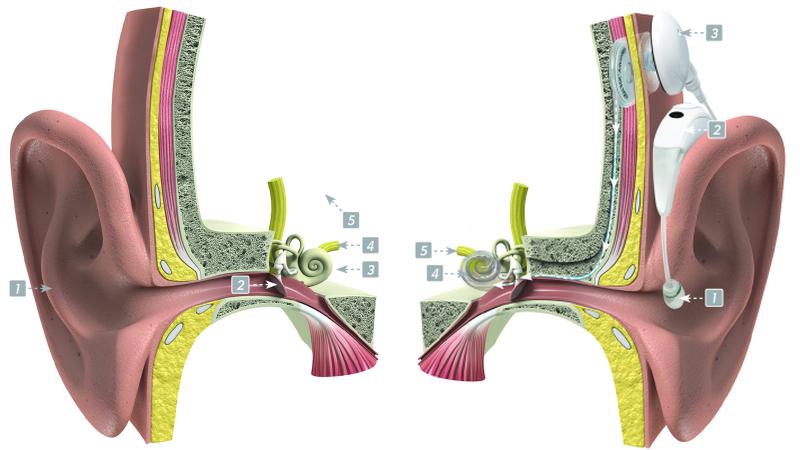 Bimodale hooroplossing bij gehoorproblemen Advanced Bionics