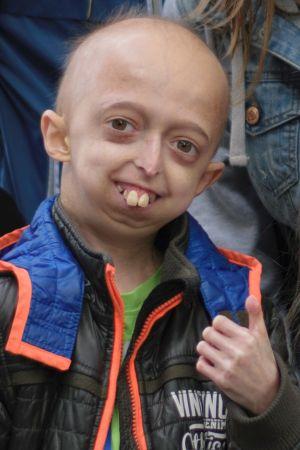 15-jarige Bjorn over de verouderingsziekte progeria