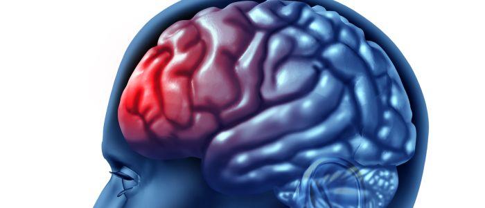 Persoonlijke factoren en ernst ongeval bepalen uiteindelijke gevolgen licht hersenletsel