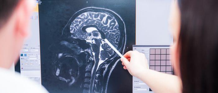 Hersenen van jongens met Duchenne anders
