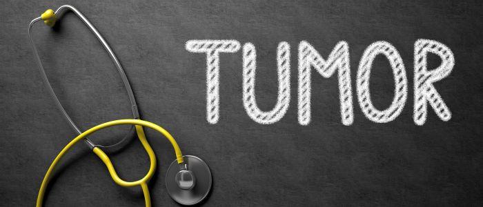 Tumorbehandeling: verbranden of kapot trillen?