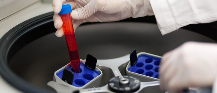 Dichterbij een bloedtest voor longkanker