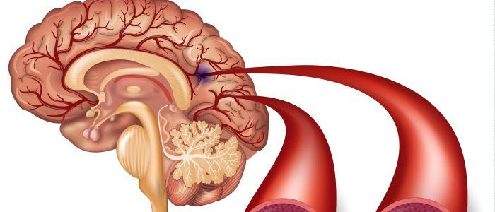 Bestraling hoofd-halskanker verhoogt risico herseninfarct