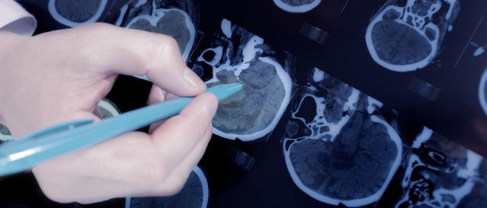 Onverwacht inzicht in de behandeling van epilepsie