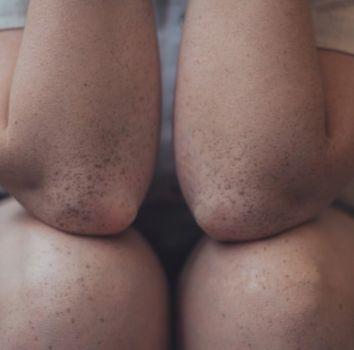 huidaandoeningen - knie - elleboog