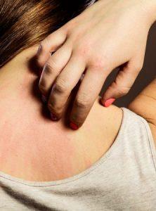 allergie - eczeem