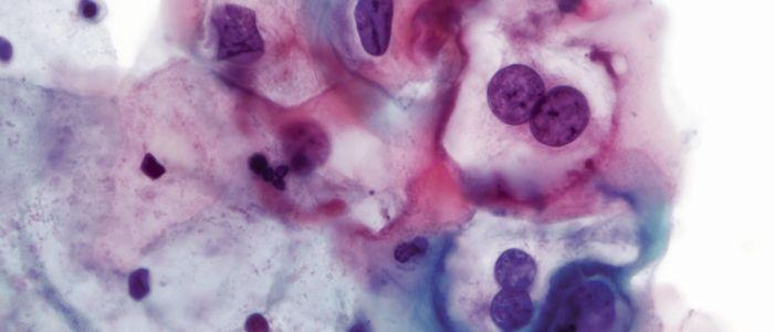 Bevolkingsonderzoek baarmoederhalskanker vernieuwd