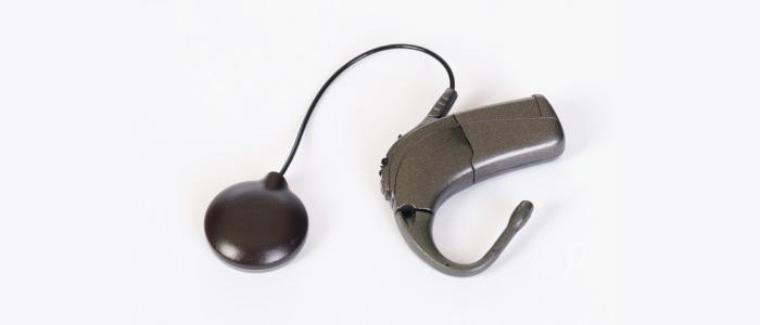 De snelle ontwikkeling van het cochleair implantaat