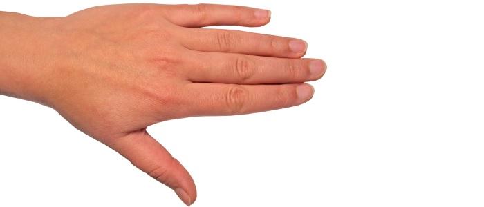 Handproblemen betrouwbaar in beeld brengen met 3D-fotografie