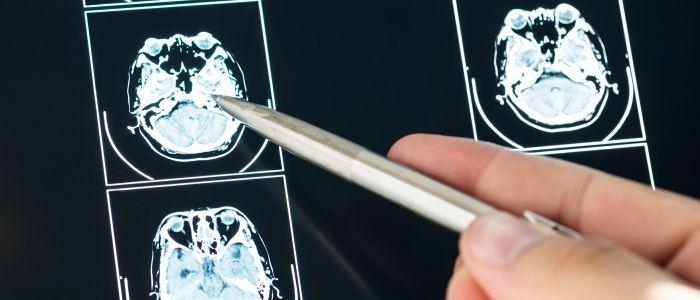 Hersenscan kan Alzheimer vroegtijdig opsporen