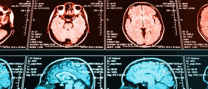 Weinig overlap tussen personen met schizofrenie