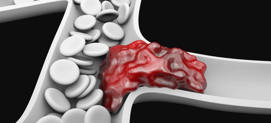 De voordelen van zelfzorg bij trombose