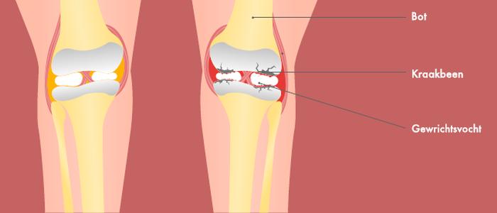 Kraakbeenschade door artrose: een sluipend proces