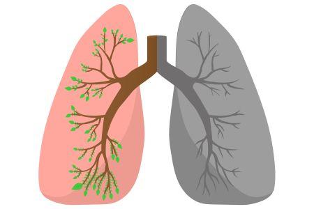 Behandeling longkanker: het belang van samen beslissen