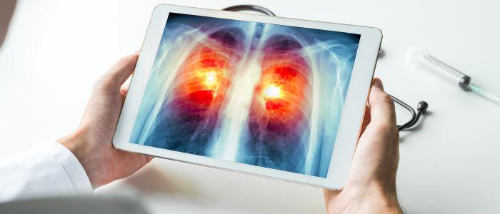 Ontdekkingen & ontwikkelingen bij longkanker