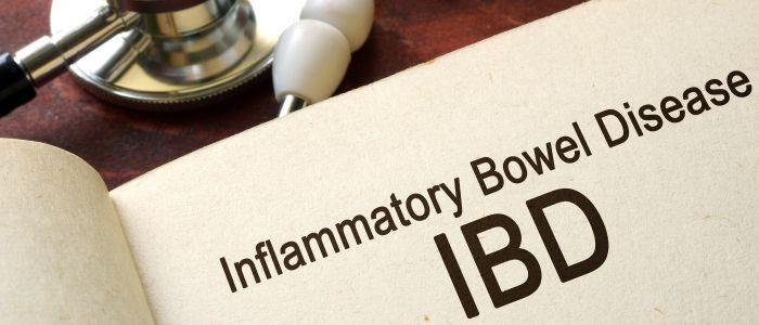 Nieuwe test kan mogelijk bijdragen aan gepersonaliseerde behandeling bij IBD