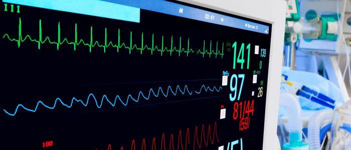 Wat vertelt de monitor op de hartbewaking?