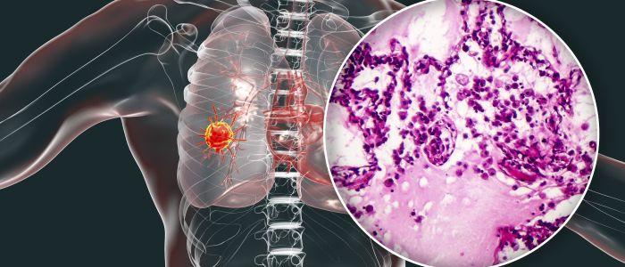Longkanker: de laatste ontwikkelingen