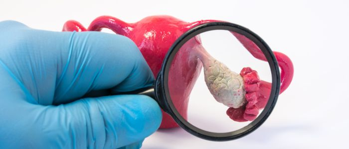 Nieuwe test spoort eierstokkanker eerder op