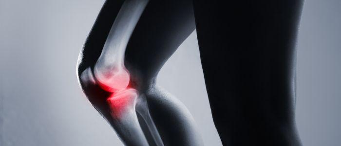 Overgewicht vergroot de kans op artrose