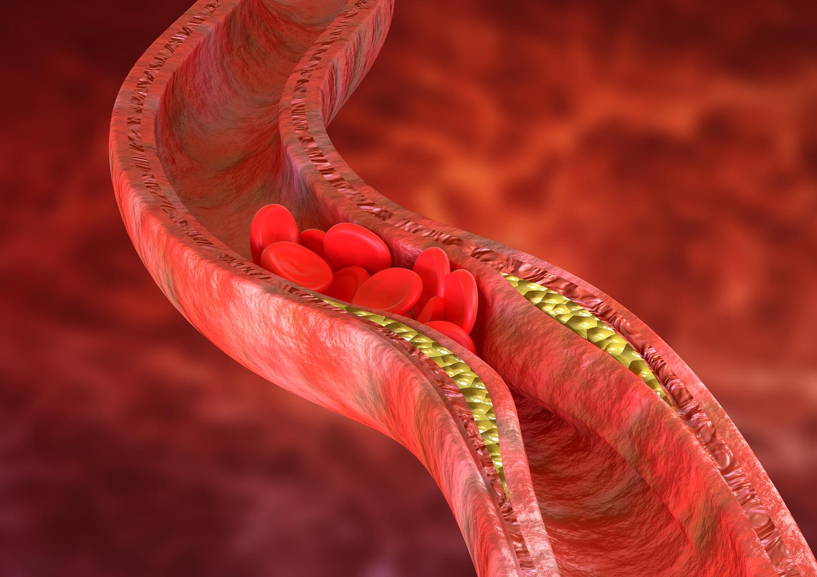 Wat zijn etalagebenen, oftewel: wat is perifeer arterieel vaatlijden?